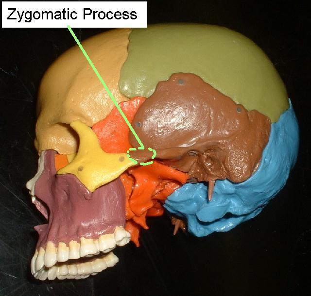 zygomatic processZygomatic Process Of The Maxilla Radiograph